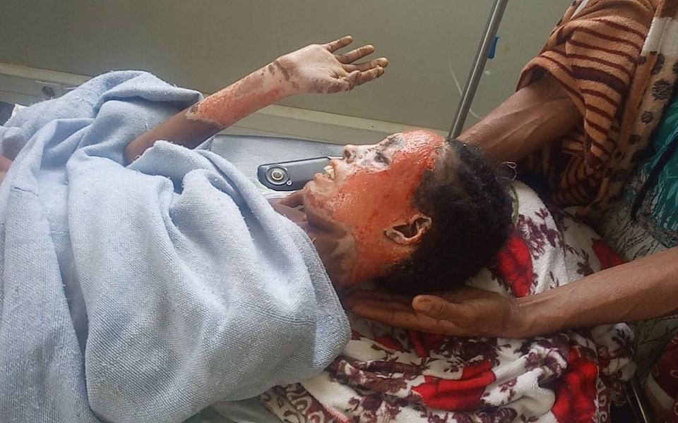 Tigrayan civilian injured by Ethiopian forces
